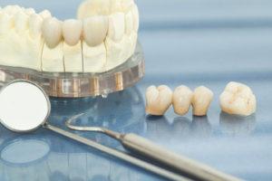 Studio Alloero Torino // Protesi dentarie