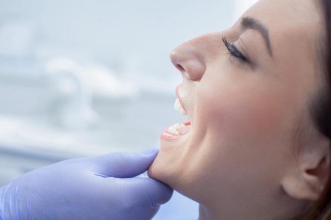 Studio Alloero Sbiancamento denti